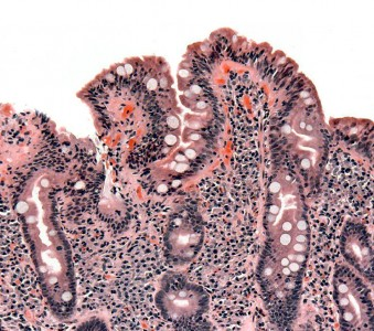 biopsy of small bowel in coeliac disease